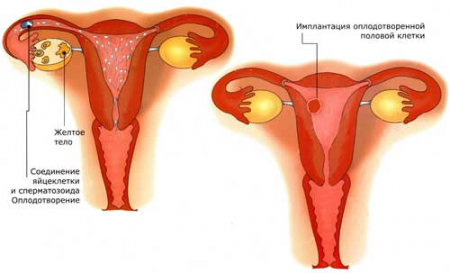 Пример имплантации плода в матке